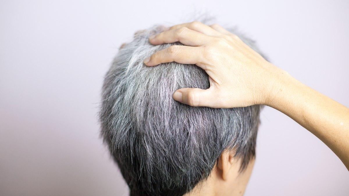 Haare chemo nach graue färben Nachwachsen der